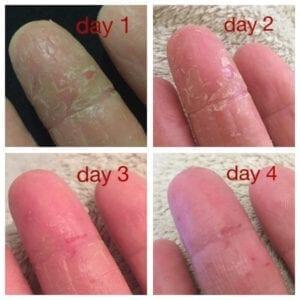 Michelle - Coconut Body Milk - Hands - Eczema