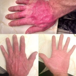 Organic Skins - Coconut Body Milk - Hand Burn