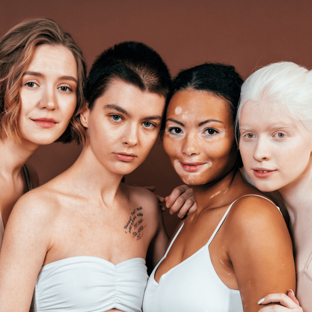 Infusing Life with Skin Positivity